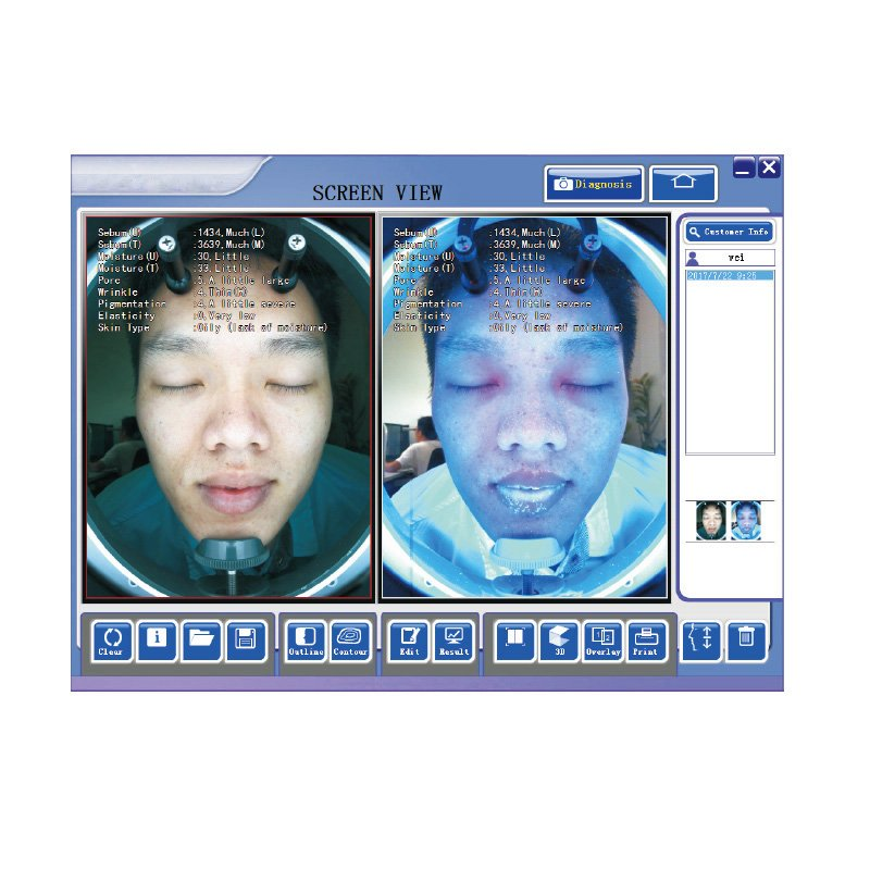 CE approval skin analyzer equipment for facial
